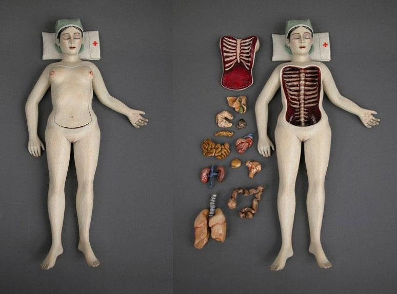 Surgery (Worry doll) © Renee Laferriere