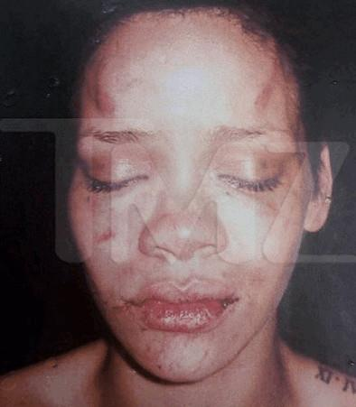 Rihanna after being beaten by Chris Brown