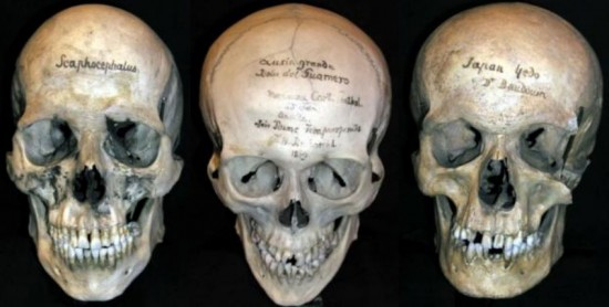 Mtter Museum Save-a-Skull