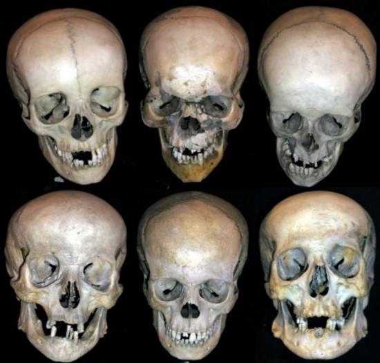 Mütter Museum Save-a-Skull