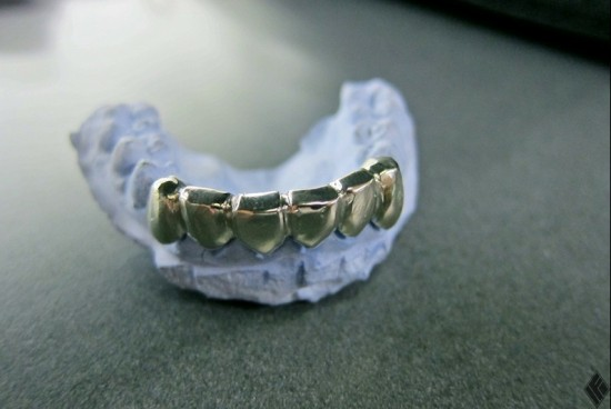 Justin Bieber's gold grill