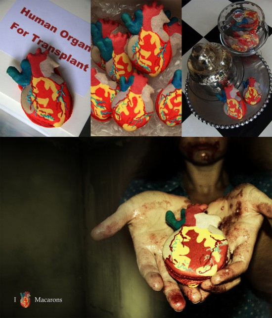 Human Organ Transplant