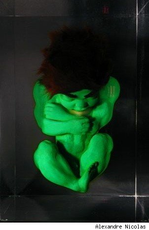 Fetal Hulk